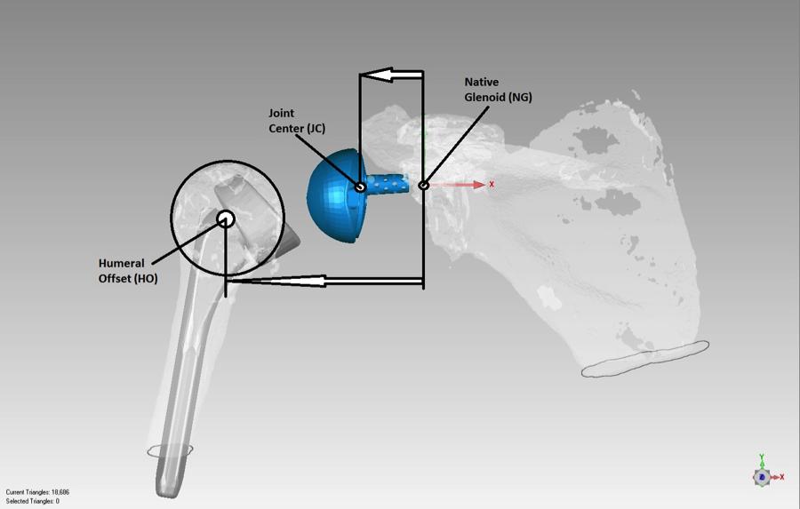 implant-design-evaluation1